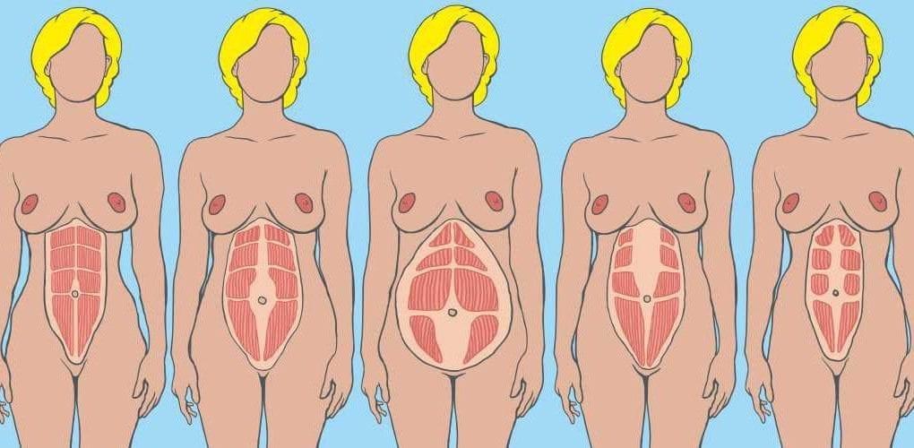 ukážky diastázy brušných svalov